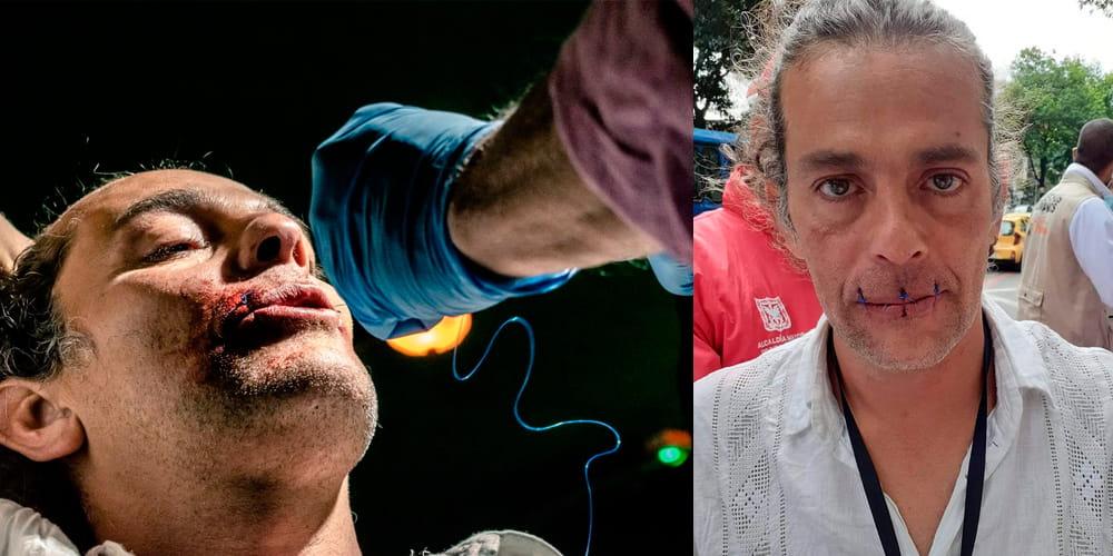 artista cosió su boca para protestar