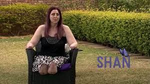 Mujer perdió extremidades luego de mordedura de un mangosta-Momento24